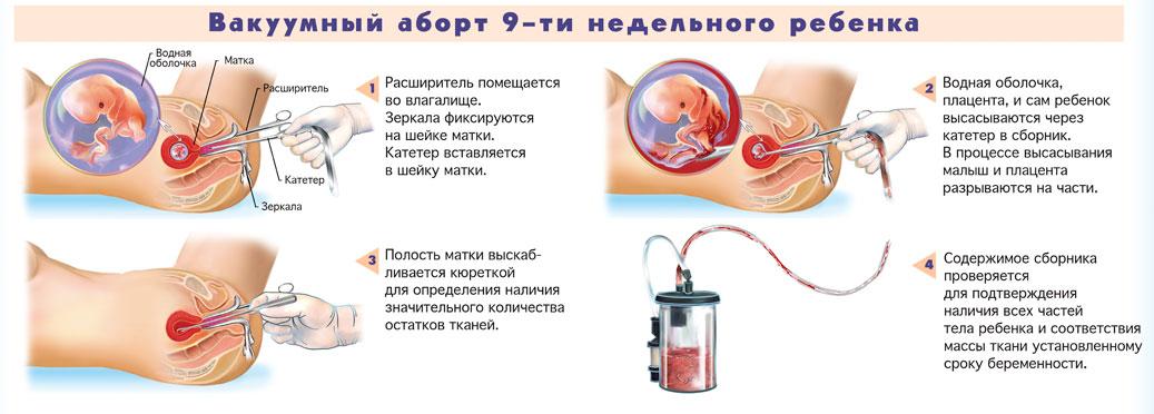 На каком сроке делают вакуумное прерывание беременности